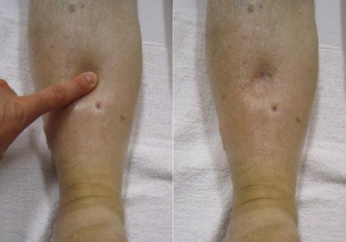 Отеки ног в стадии циррозов